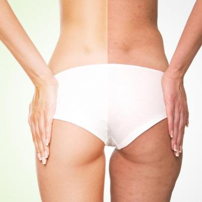 Anti-cellulite treatments