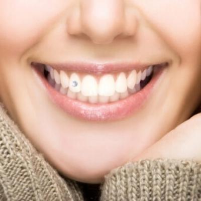 Камъче цирконий за зъб
